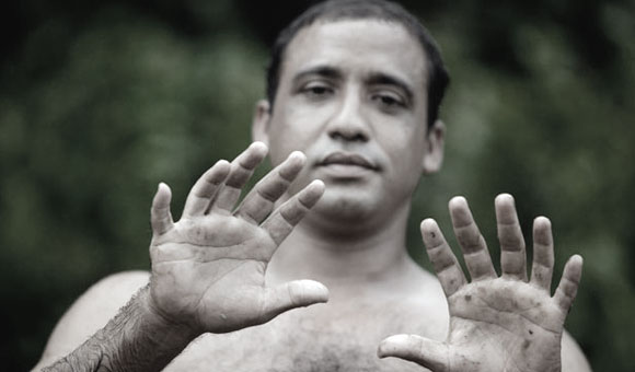 Yoandri Hernandez Garrido shows off his six-fingered hands