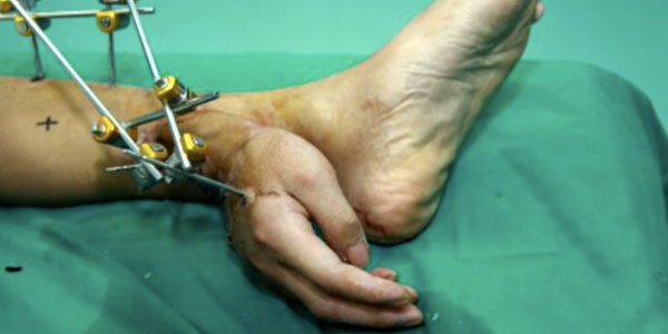 Man's severed hand attached to his ankle